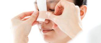 Искривленная перегородка носа