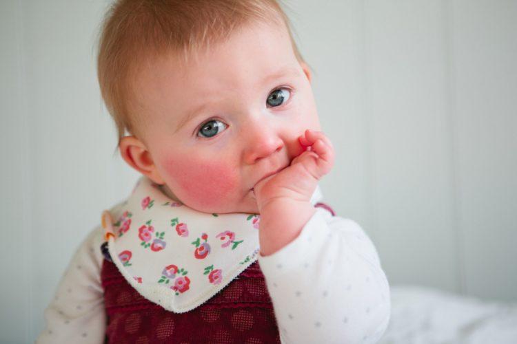 у ребёнка красные щёки