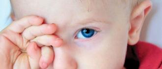 Детский блефарит