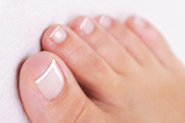 грибок ногтя