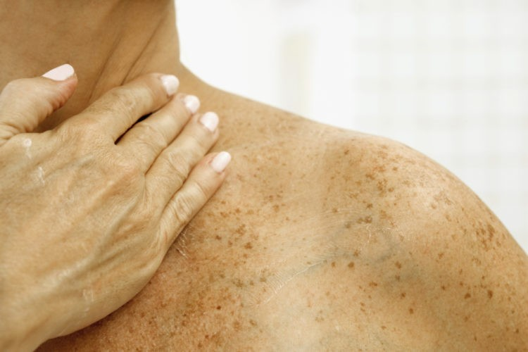 Коричневые пятна на коже