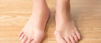 косточка на ноге как лечить