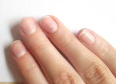 синеют ногти на руках